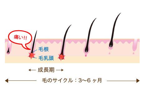 一般的な脱毛