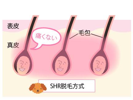 SHR脱毛の場合