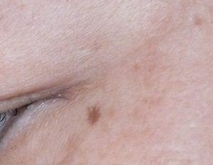 56才、目尻の皺